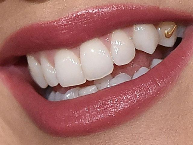 Celebrity Teeth Up Close