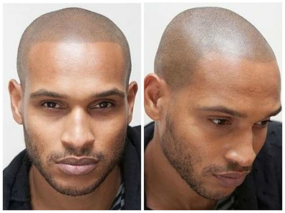 Men Have Found A Unique Solution To Hiding Male Pattern Baldness Enchanting Male Pattern Baldness