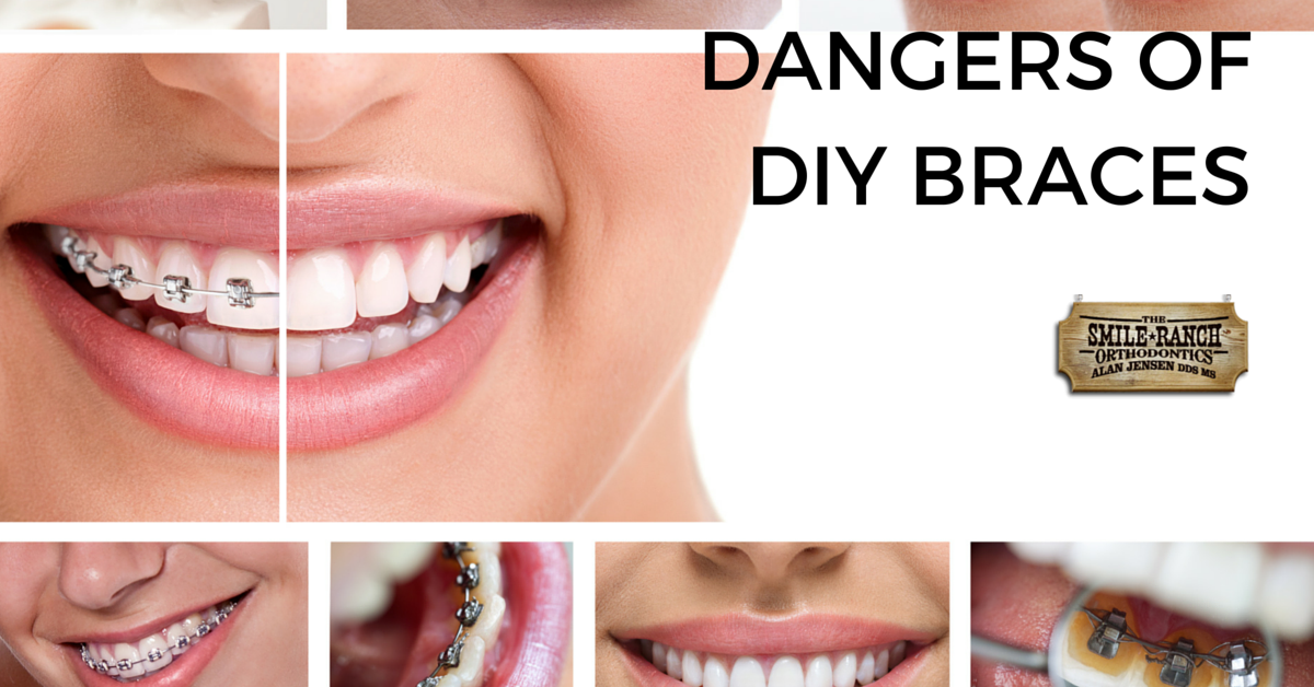 The dangers of do it yourself braces playbuzz solutioingenieria Image collections