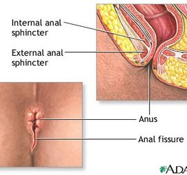 Anal Disorders Guide: Causes, Symptoms and - Drugscom