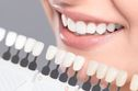 Give Your Teeth A Natural Whitening Makeover